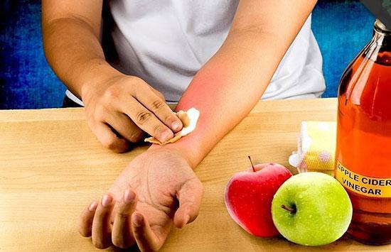 انواع سوختگی پوست و راه های رایج درمان و التیام آن ها