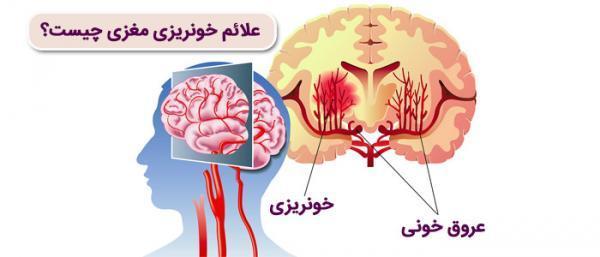 علائم خونریزی مغزی چیست؟